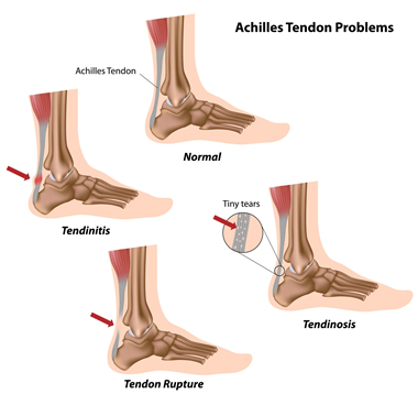 achilles-tendon-problem